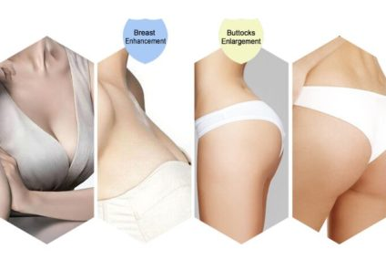 Buttocks Augmentation Important Facts