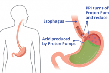 Side Effects and Safety of Proton Pump Inhibitors